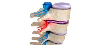 hernias discales y quiropráctica