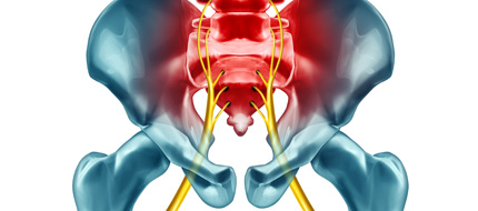 quiropractica para ciatica